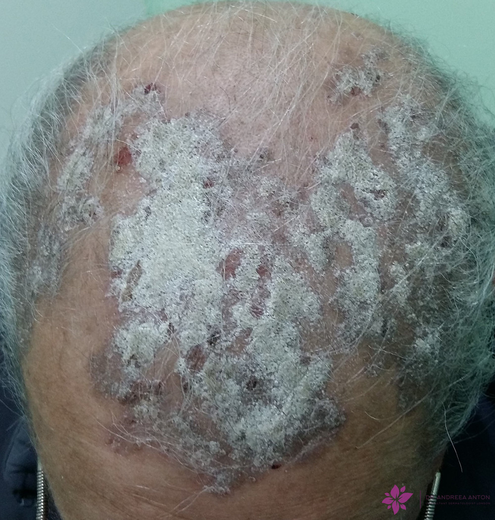 scalp psoriasis well demarcated plaques