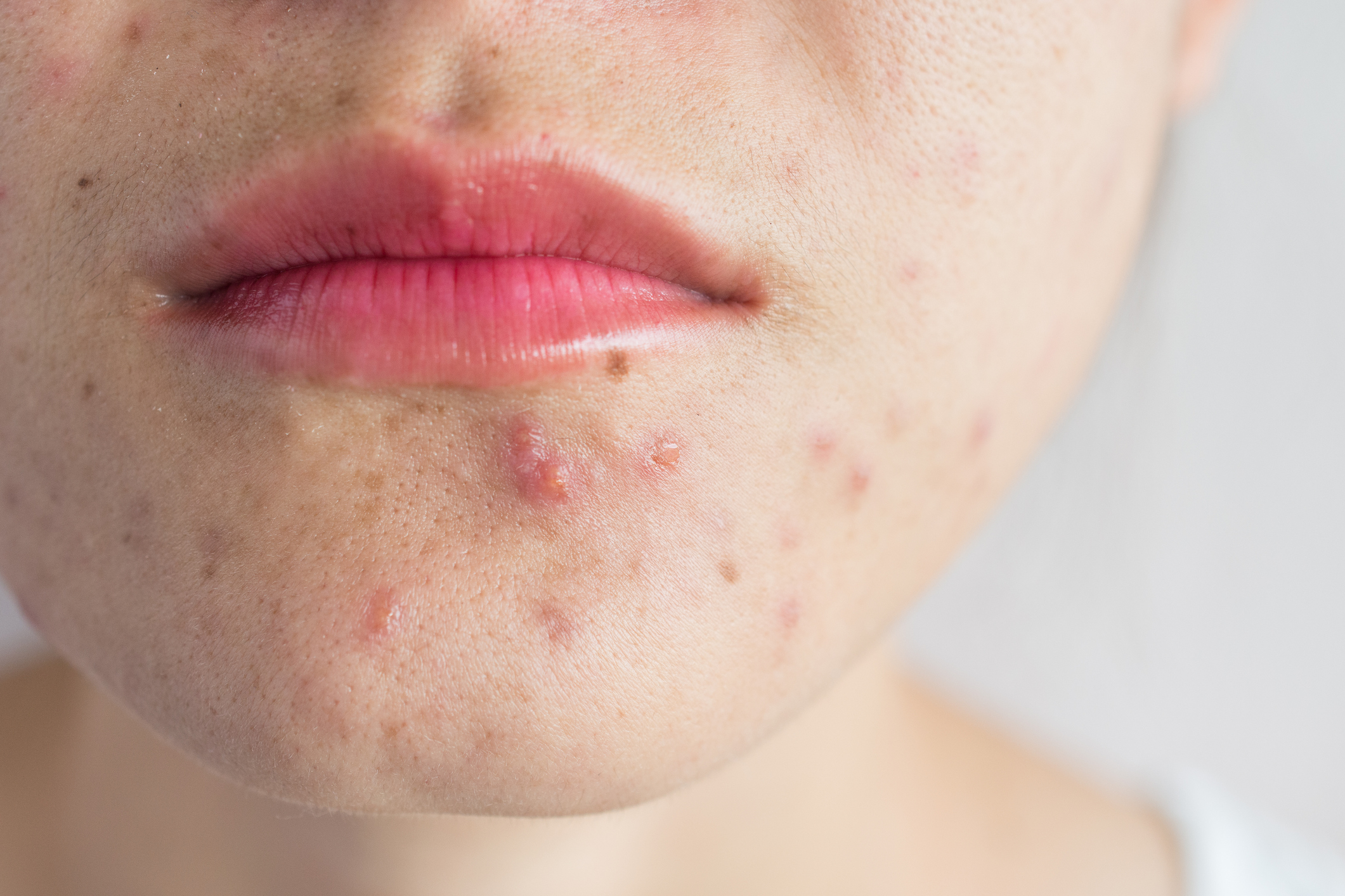 acne mouth face perioral dermatitis