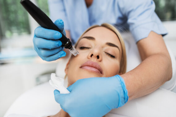 microneedling treatment for acne scars